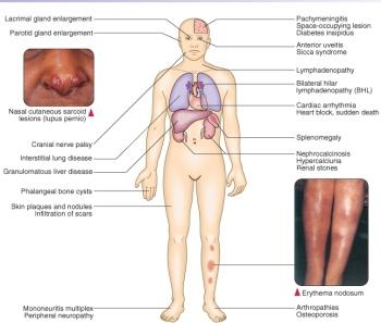 sarcoidose_symptomen